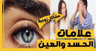 ماهي علامات العين على الاطفال