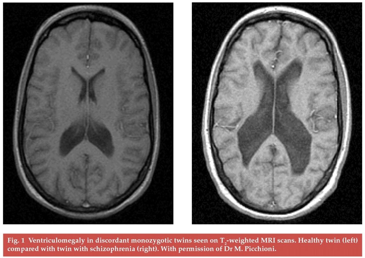 صورة ماهي اعراض مرض الاخت افيدوني 1489