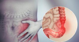أعراض القولون العصبي الجسدية والنفسية.. ابتعد عن القلق والإجهاد