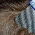 كيفية علاج قمل الرأس - موضوع