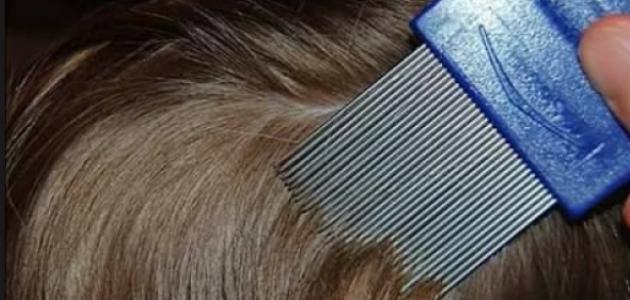طريقة علاج قمل الرأس  موضوع