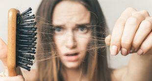 أهم 6 أسباب تؤدي إلى تساقط الشعر وكيفية الوقاية منها - الدكتورة رشا حامد