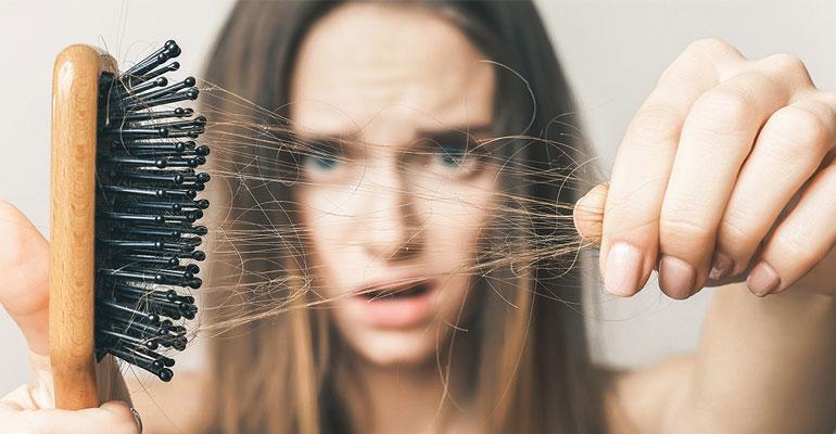 أهم 6 سبب تؤدى الى تساقط الشعر و طريقة الوقايه منها  الدكتوره رشا حامد