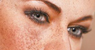 علاج الكلف والنمش نهائياً – موقع جمالكِ