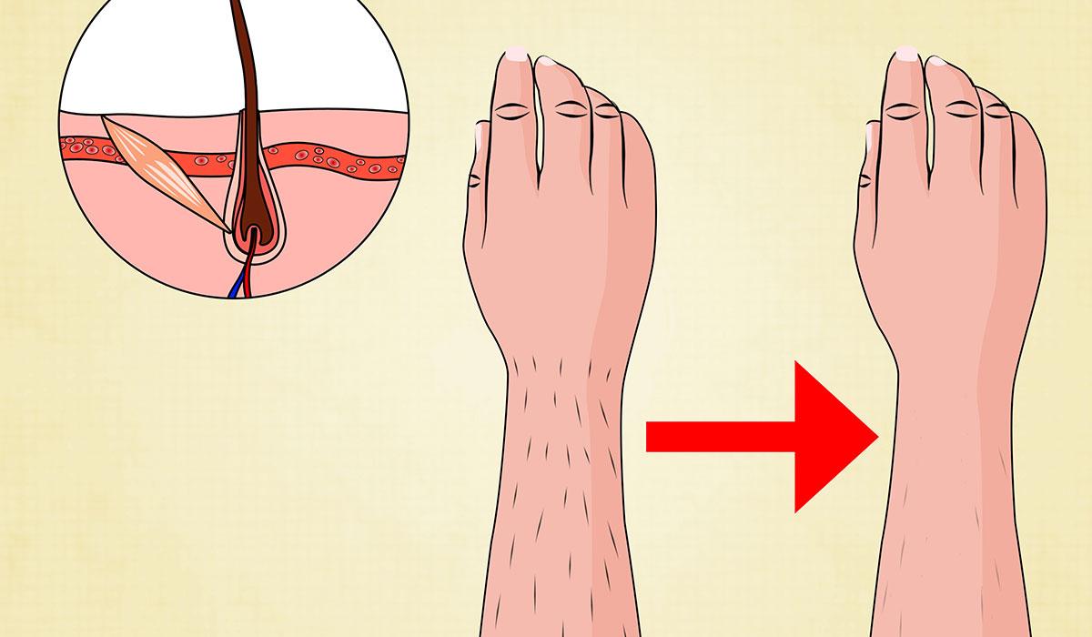 اسباب ظهور الشعر بعد الليزر