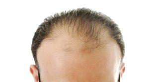 علاج الصلع الوراثي عند الرجال