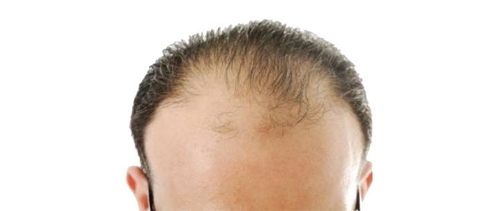 علاج الصلع الوراثى عند الرجال